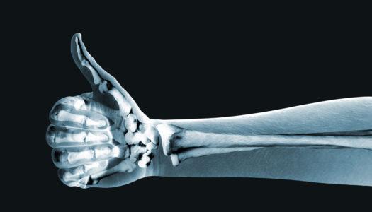 Kto stworzył osteologię i co sobie, do diabła, myślał?